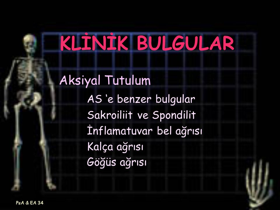 KLİNİK BULGULAR Aksiyal Tutulum AS 'e benzer bulgular