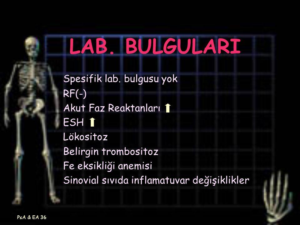 LAB. BULGULARI Spesifik lab. bulgusu yok RF(-) Akut Faz Reaktanları