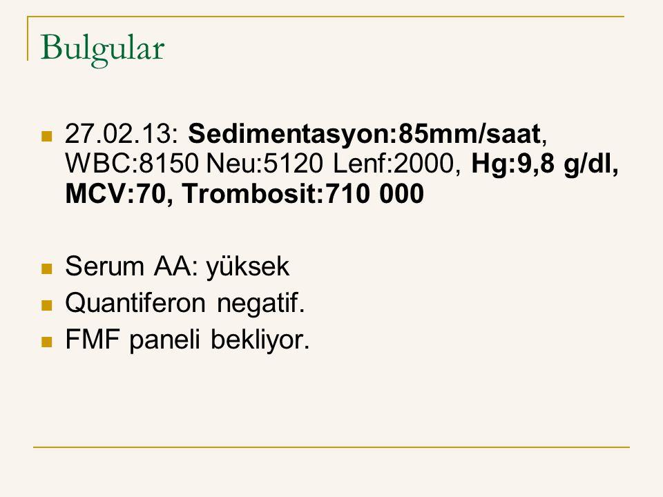 Bulgular 27.02.13: Sedimentasyon:85mm/saat, WBC:8150 Neu:5120 Lenf:2000, Hg:9,8 g/dl, MCV:70, Trombosit:710 000.
