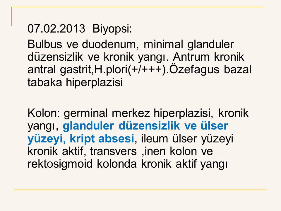 07.02.2013 Biyopsi:
