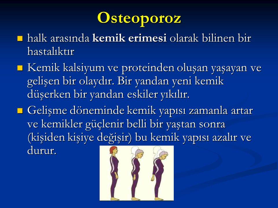 Osteoporoz halk arasında kemik erimesi olarak bilinen bir hastalıktır
