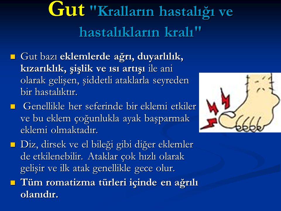 Gut Kralların hastalığı ve hastalıkların kralı