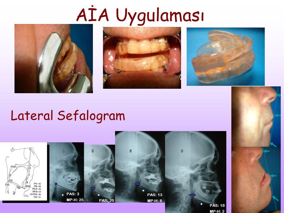 AİA Uygulaması Lateral Sefalogram 3 6 9 PAS: 3 MP-H: 25 PAS: 13