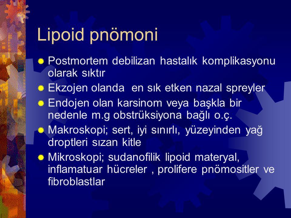 Lipoid pnömoni Postmortem debilizan hastalık komplikasyonu olarak sıktır. Ekzojen olanda en sık etken nazal spreyler.