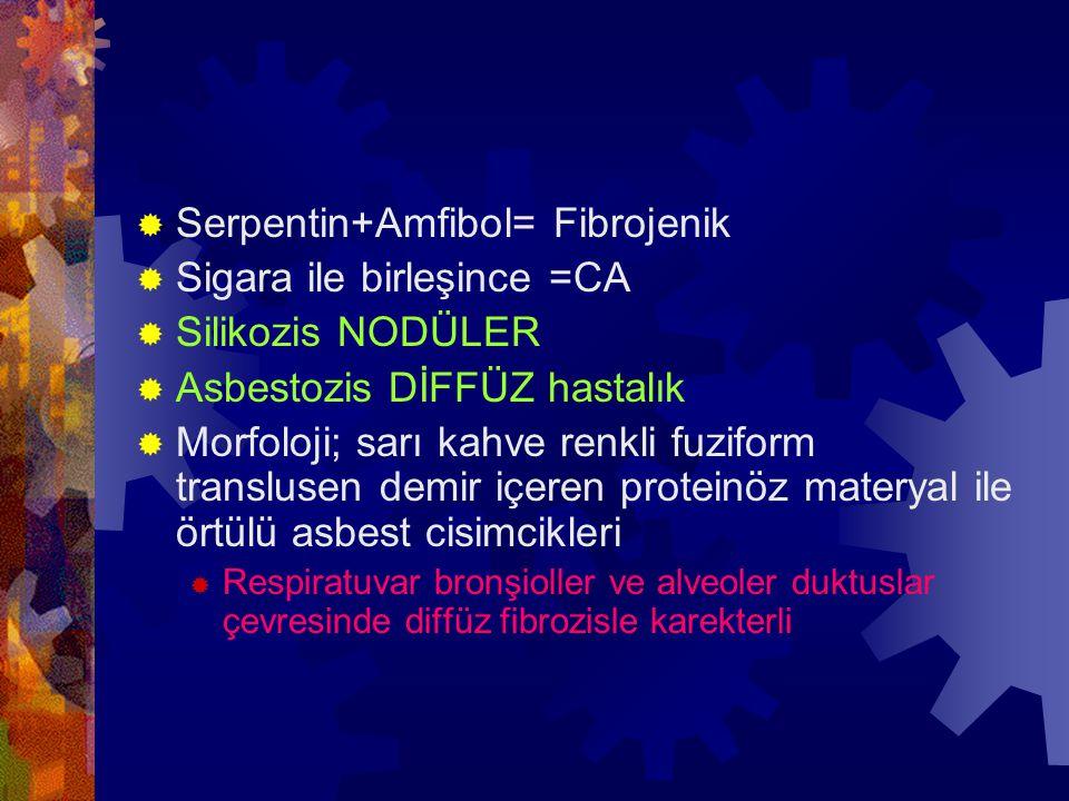 Serpentin+Amfibol= Fibrojenik Sigara ile birleşince =CA