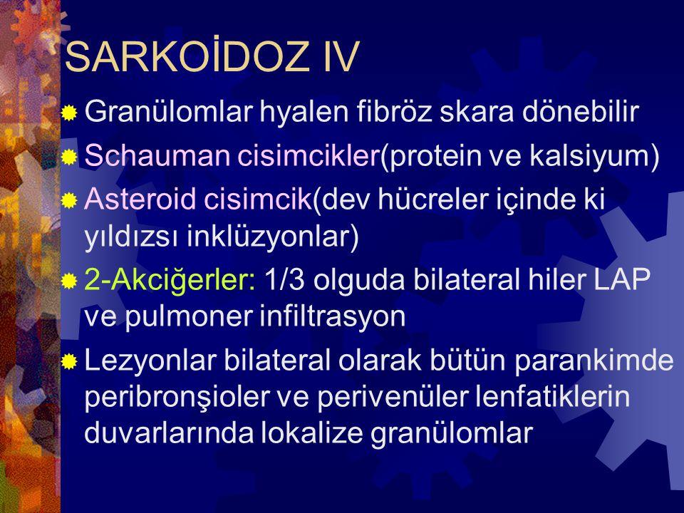 SARKOİDOZ IV Granülomlar hyalen fibröz skara dönebilir