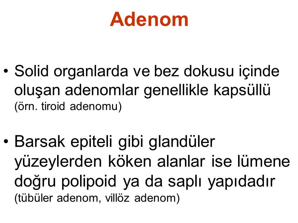 Adenom Solid organlarda ve bez dokusu içinde oluşan adenomlar genellikle kapsüllü (örn. tiroid adenomu)