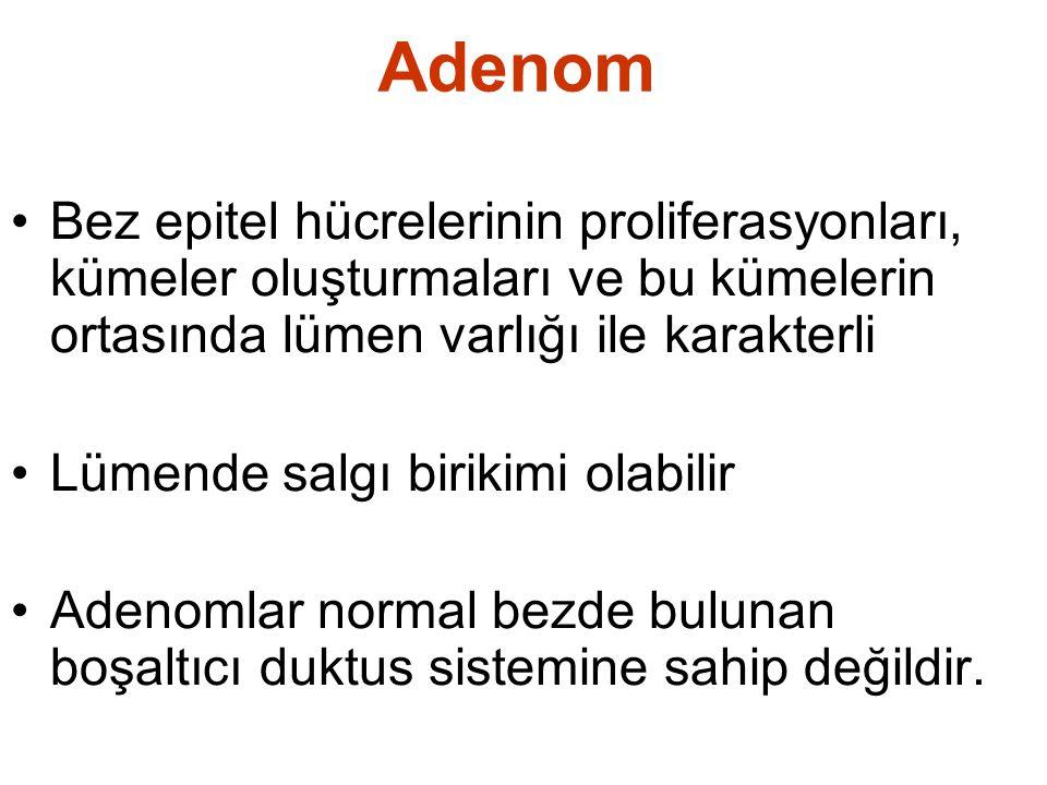 Adenom Bez epitel hücrelerinin proliferasyonları, kümeler oluşturmaları ve bu kümelerin ortasında lümen varlığı ile karakterli.