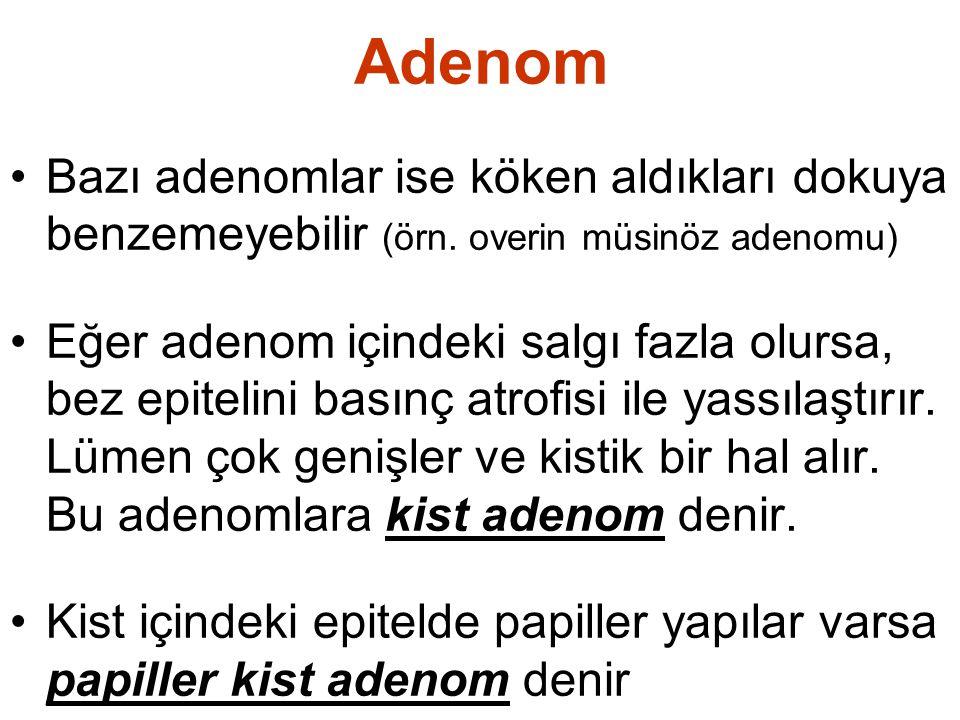 Adenom Bazı adenomlar ise köken aldıkları dokuya benzemeyebilir (örn. overin müsinöz adenomu)