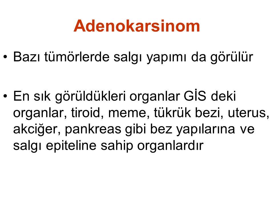 Adenokarsinom Bazı tümörlerde salgı yapımı da görülür