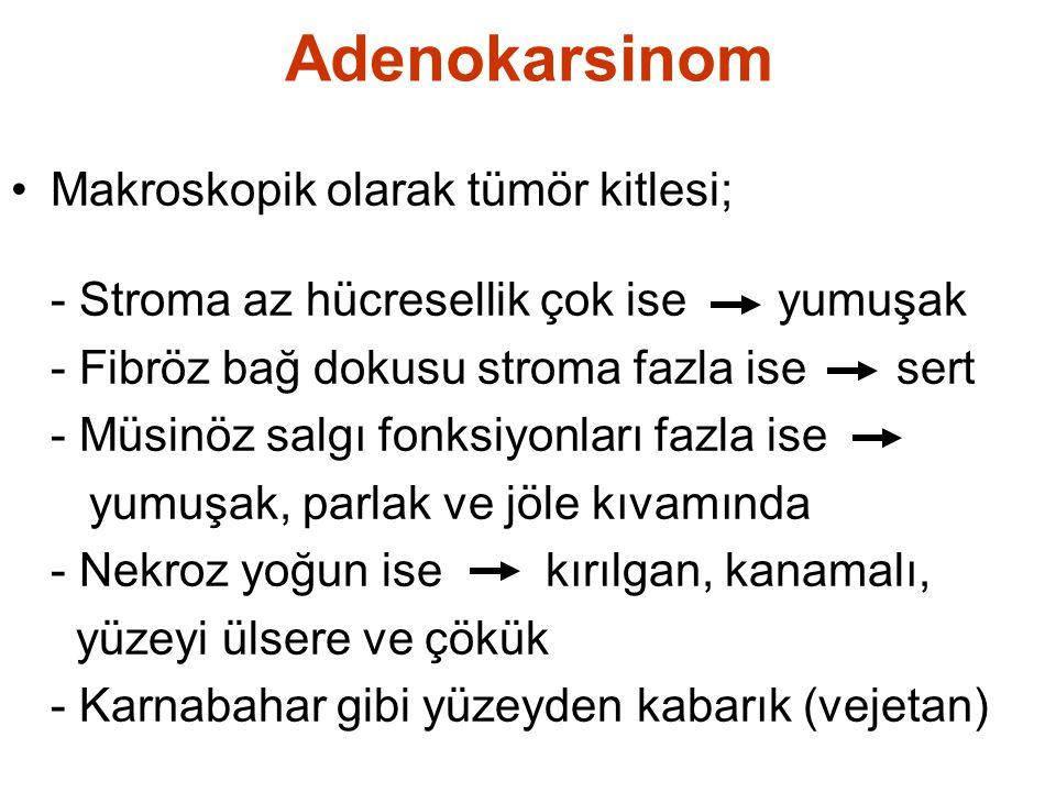 Adenokarsinom Makroskopik olarak tümör kitlesi;