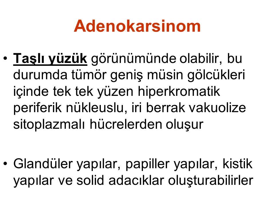 Adenokarsinom