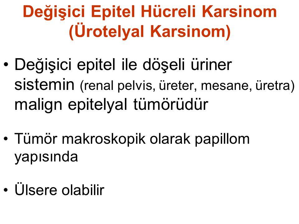 Değişici Epitel Hücreli Karsinom (Ürotelyal Karsinom)