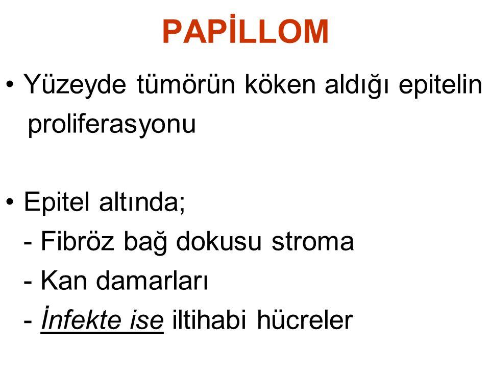 PAPİLLOM Yüzeyde tümörün köken aldığı epitelin proliferasyonu