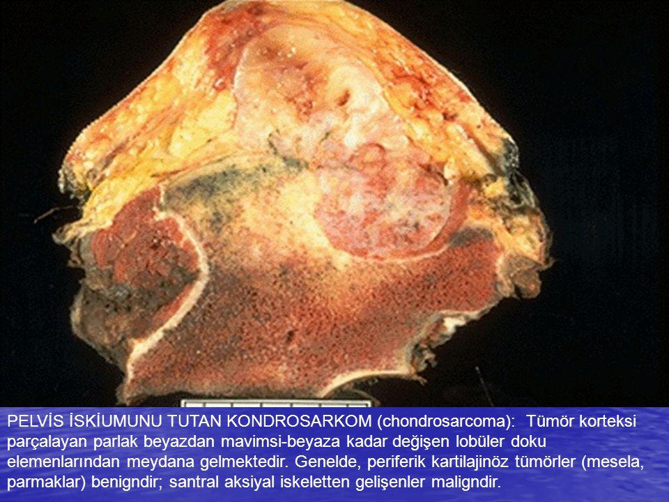 PELVİS İSKİUMUNU TUTAN KONDROSARKOM (chondrosarcoma): Tümör korteksi parçalayan parlak beyazdan mavimsi-beyaza kadar değişen lobüler doku elemenlarından meydana gelmektedir.