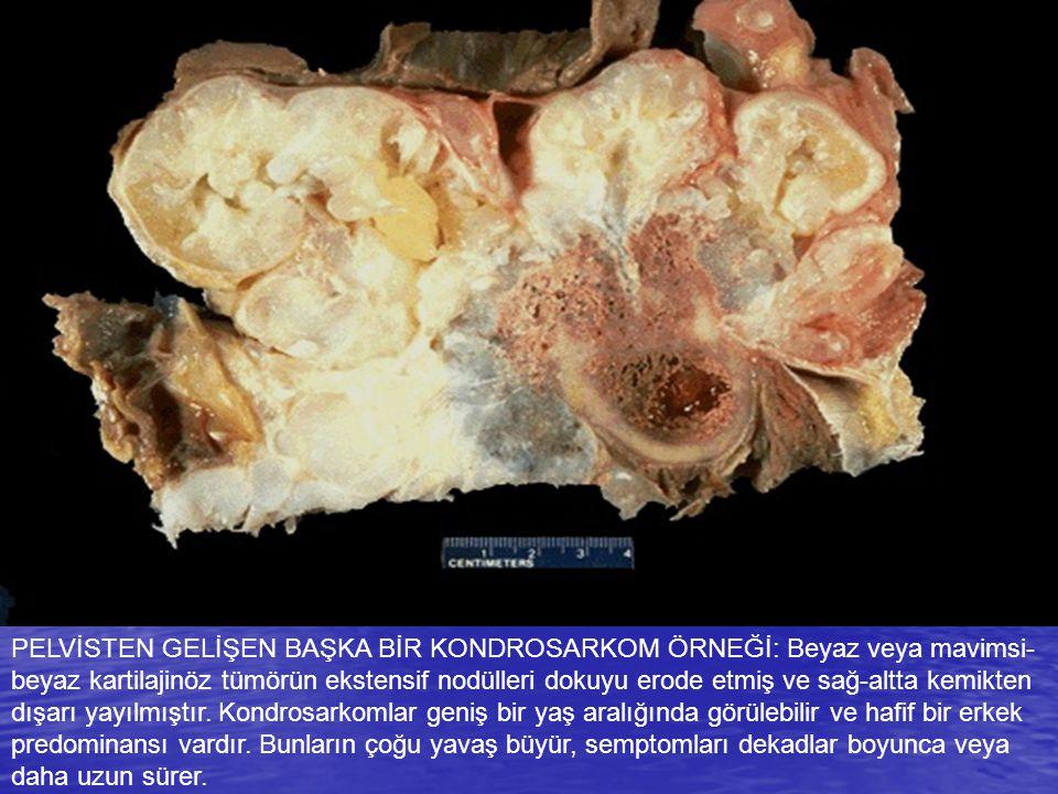 PELVİSTEN GELİŞEN BAŞKA BİR KONDROSARKOM ÖRNEĞİ: Beyaz veya mavimsi-beyaz kartilajinöz tümörün ekstensif nodülleri dokuyu erode etmiş ve sağ-altta kemikten dışarı yayılmıştır.