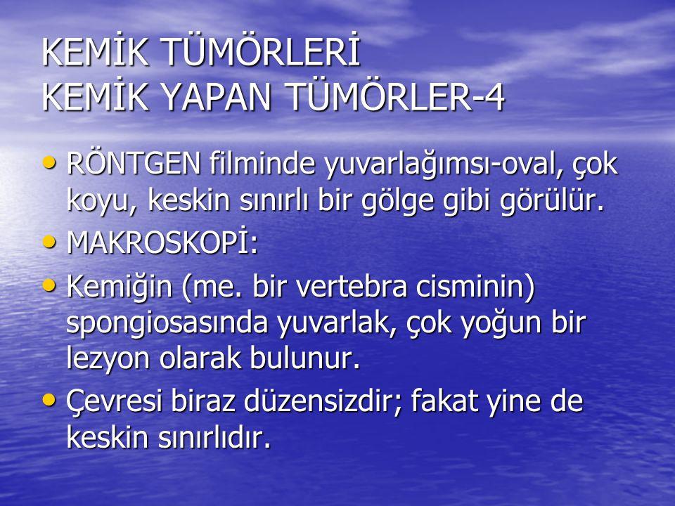 KEMİK TÜMÖRLERİ KEMİK YAPAN TÜMÖRLER-4