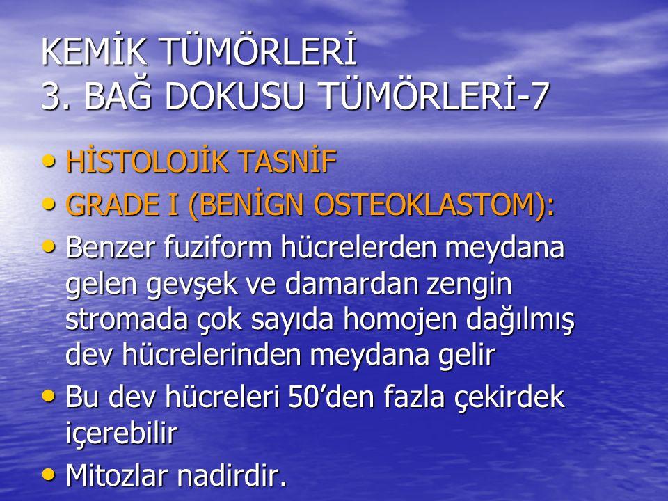 KEMİK TÜMÖRLERİ 3. BAĞ DOKUSU TÜMÖRLERİ-7