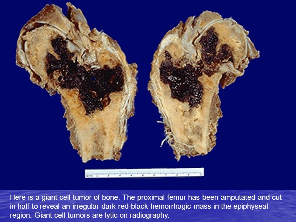 Here is a giant cell tumor of bone