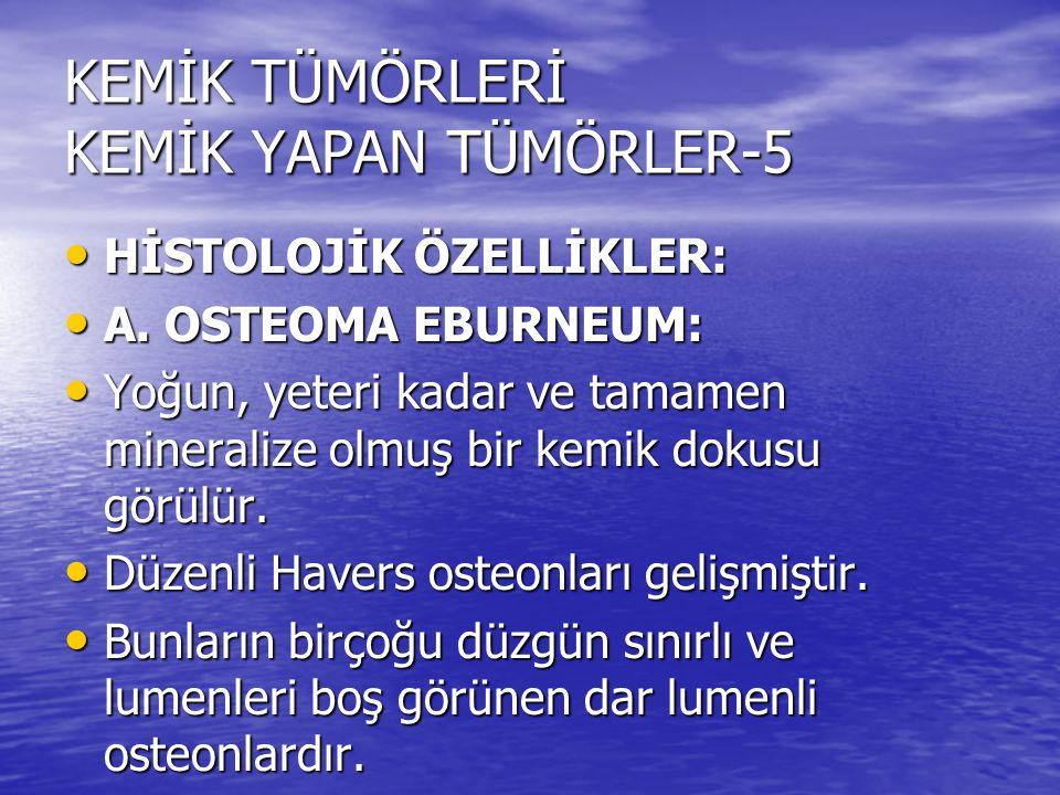 KEMİK TÜMÖRLERİ KEMİK YAPAN TÜMÖRLER-5