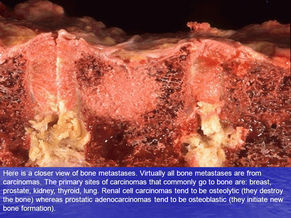 Here is a closer view of bone metastases