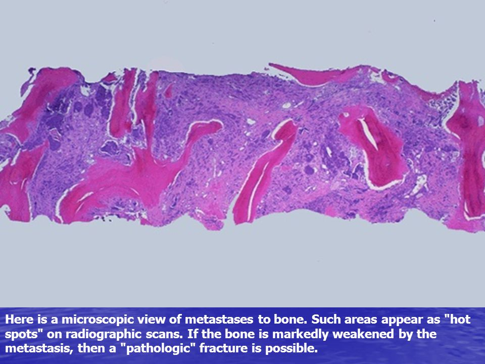 Here is a microscopic view of metastases to bone