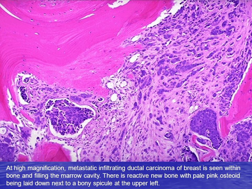 At high magnification, metastatic infiltrating ductal carcinoma of breast is seen within bone and filling the marrow cavity.