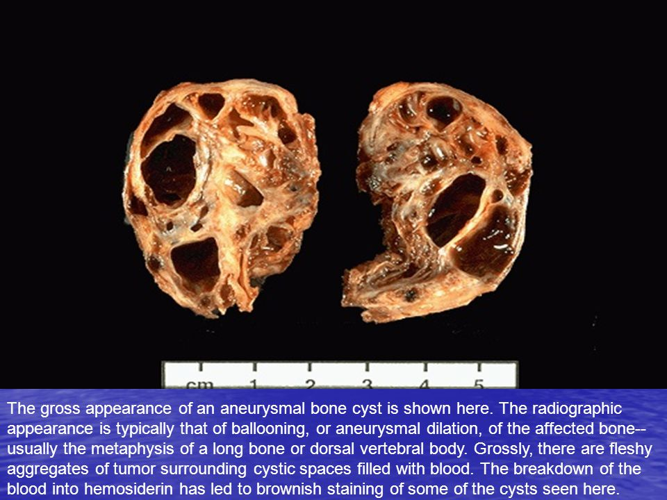 The gross appearance of an aneurysmal bone cyst is shown here