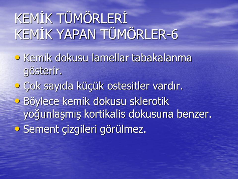 KEMİK TÜMÖRLERİ KEMİK YAPAN TÜMÖRLER-6
