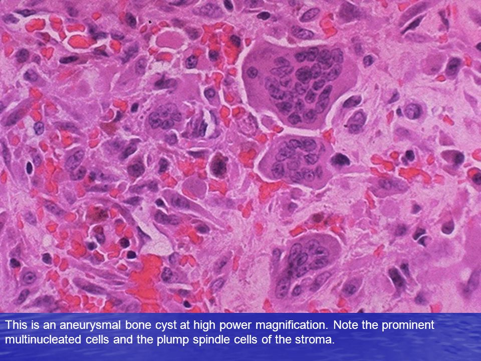 This is an aneurysmal bone cyst at high power magnification