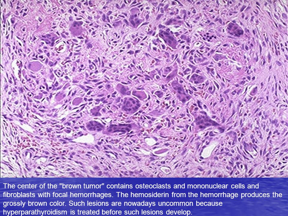 The center of the brown tumor contains osteoclasts and mononuclear cells and fibroblasts with focal hemorrhages.