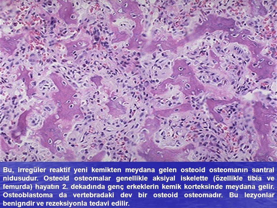 Bu, irregüler reaktif yeni kemikten meydana gelen osteoid osteomanın santral nidusudur.