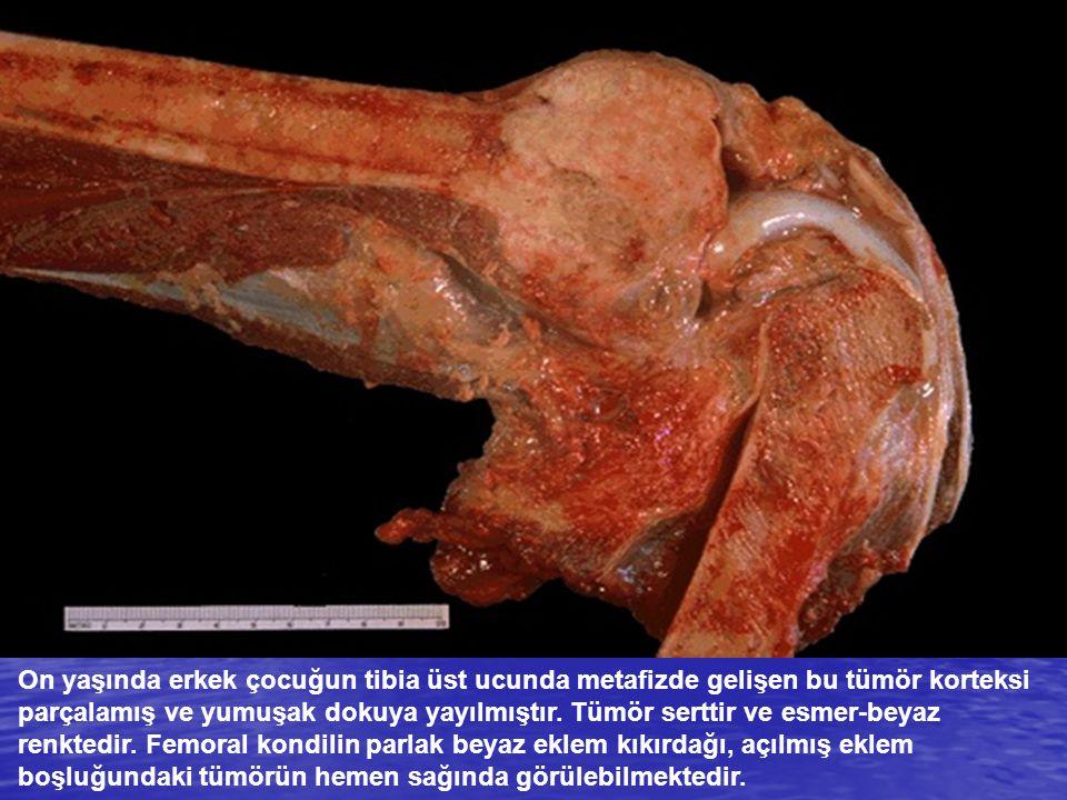 On yaşında erkek çocuğun tibia üst ucunda metafizde gelişen bu tümör korteksi parçalamış ve yumuşak dokuya yayılmıştır.