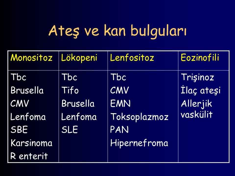 Ateş ve kan bulguları Monositoz Lökopeni Lenfositoz Eozinofili Tbc