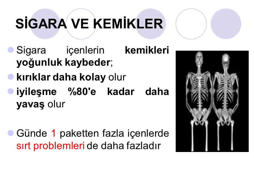 SİGARA VE KEMİKLER Sigara içenlerin kemikleri yoğunluk kaybeder;