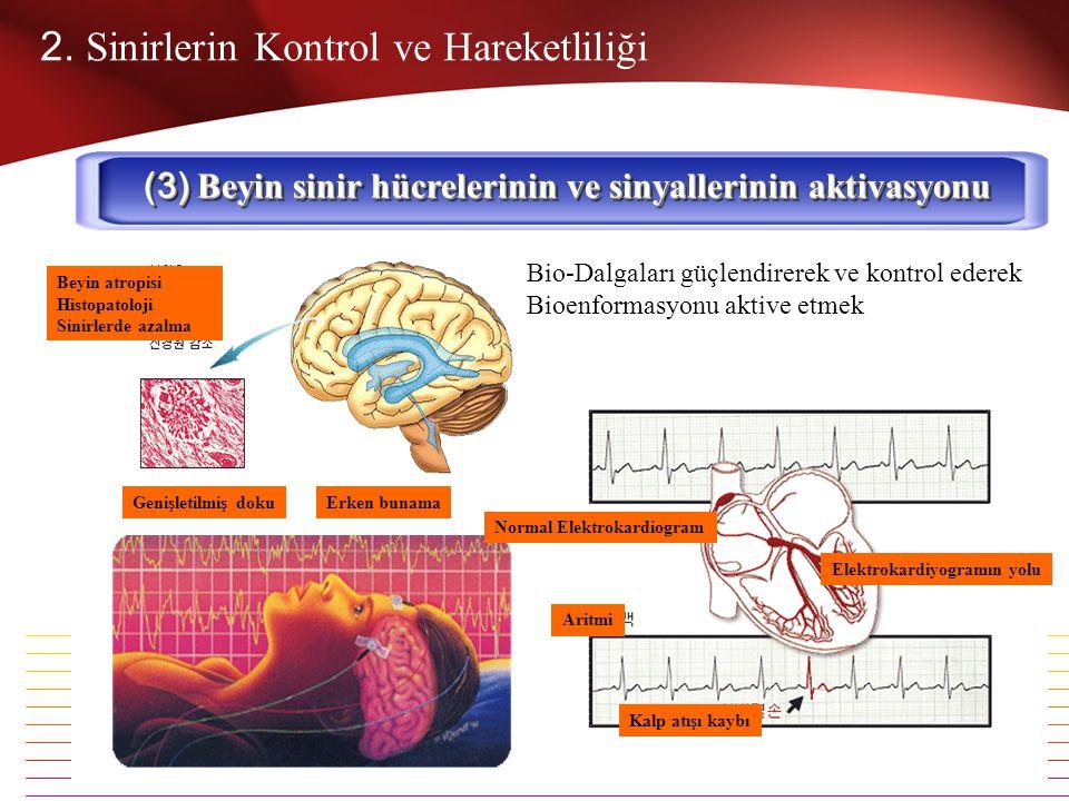 (3) Beyin sinir hücrelerinin ve sinyallerinin aktivasyonu