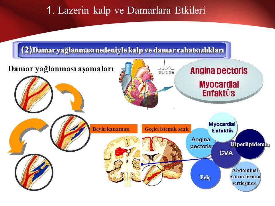 1. Lazerin kalp ve Damarlara Etkileri