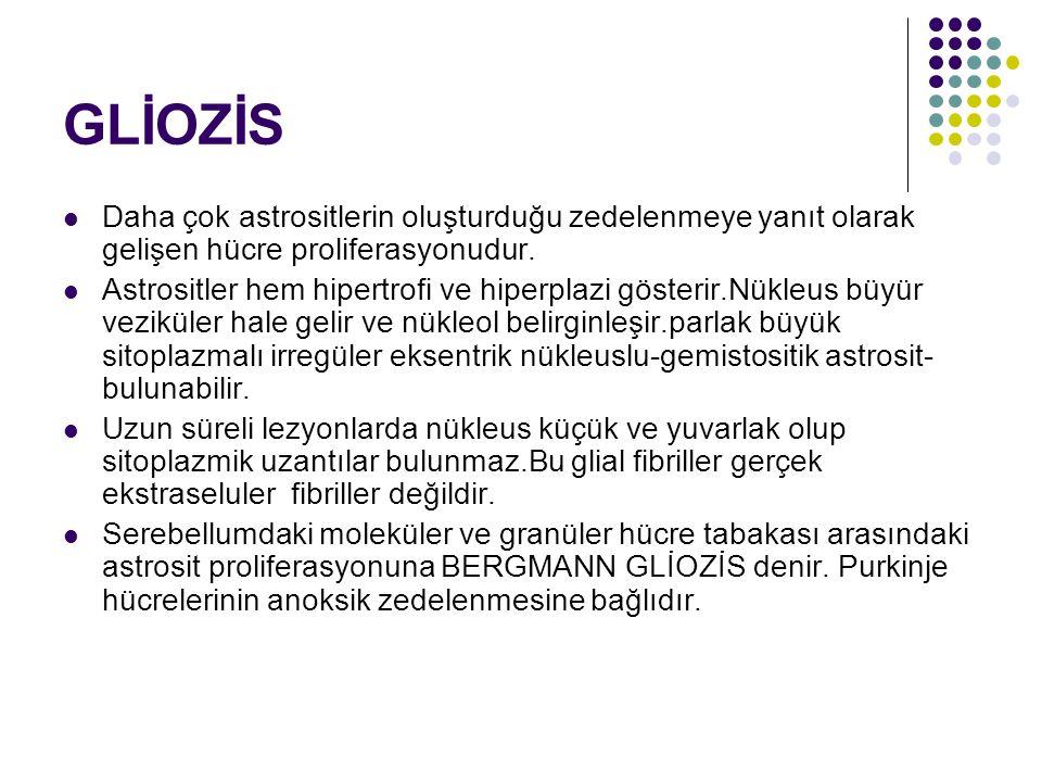 GLİOZİS Daha çok astrositlerin oluşturduğu zedelenmeye yanıt olarak gelişen hücre proliferasyonudur.