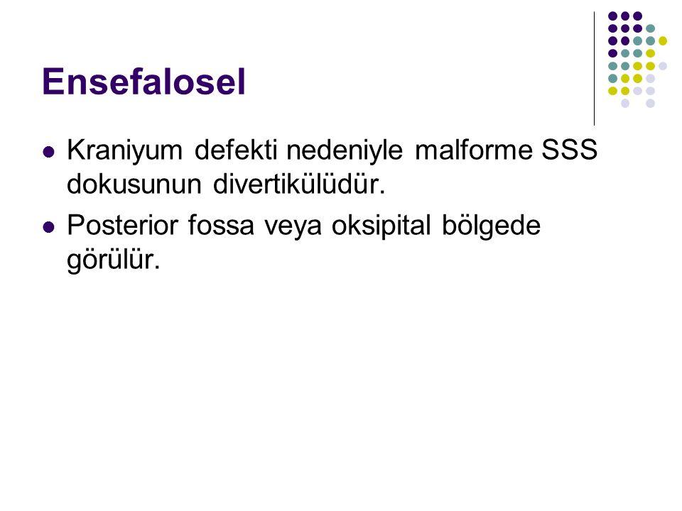 Ensefalosel Kraniyum defekti nedeniyle malforme SSS dokusunun divertikülüdür.