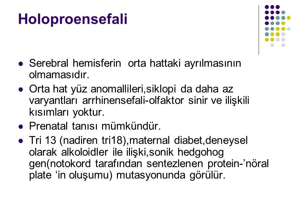 Holoproensefali Serebral hemisferin orta hattaki ayrılmasının olmamasıdır.