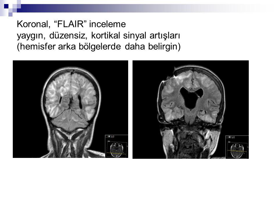 Koronal, FLAIR inceleme yaygın, düzensiz, kortikal sinyal artışları (hemisfer arka bölgelerde daha belirgin)