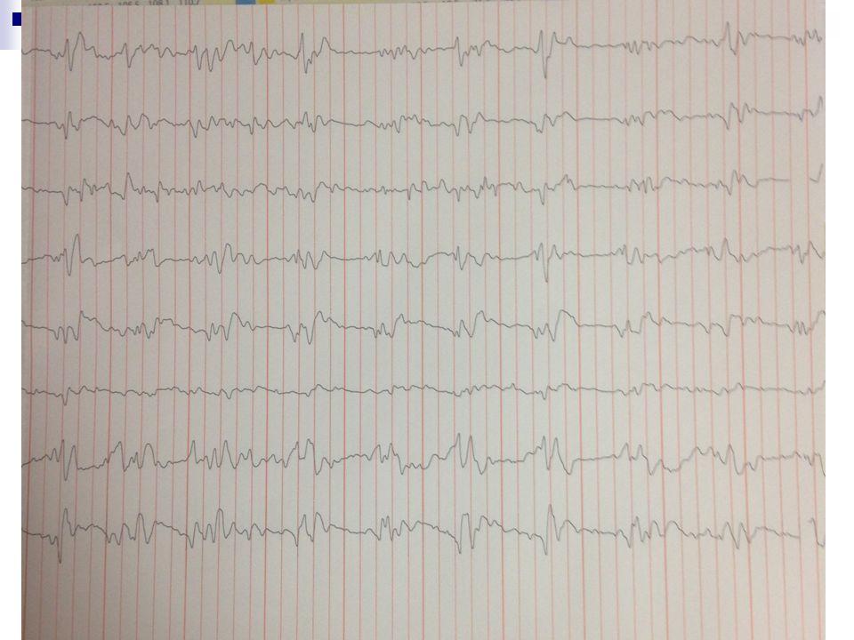 EEG görüntü EEG görüntü
