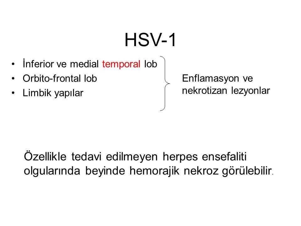 HSV-1 İnferior ve medial temporal lob. Orbito-frontal lob. Limbik yapılar. Enflamasyon ve nekrotizan lezyonlar.