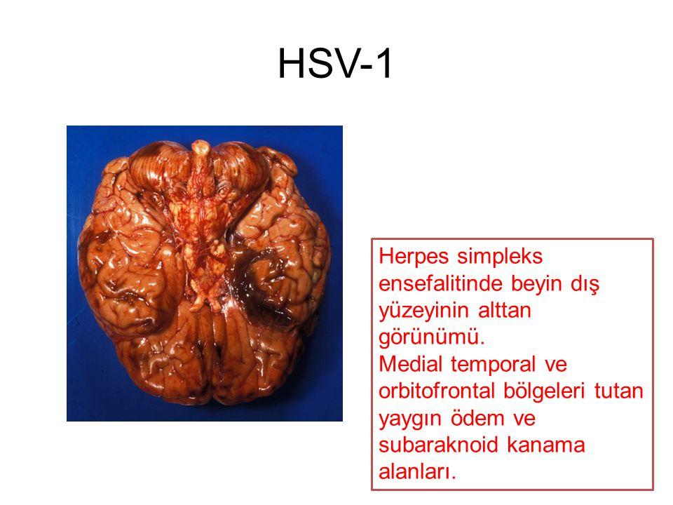 HSV-1 Herpes simpleks ensefalitinde beyin dış yüzeyinin alttan görünümü.