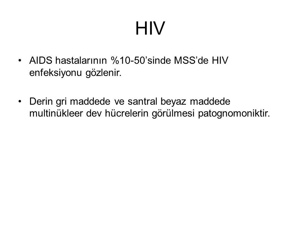 HIV AIDS hastalarının %10-50'sinde MSS'de HIV enfeksiyonu gözlenir.