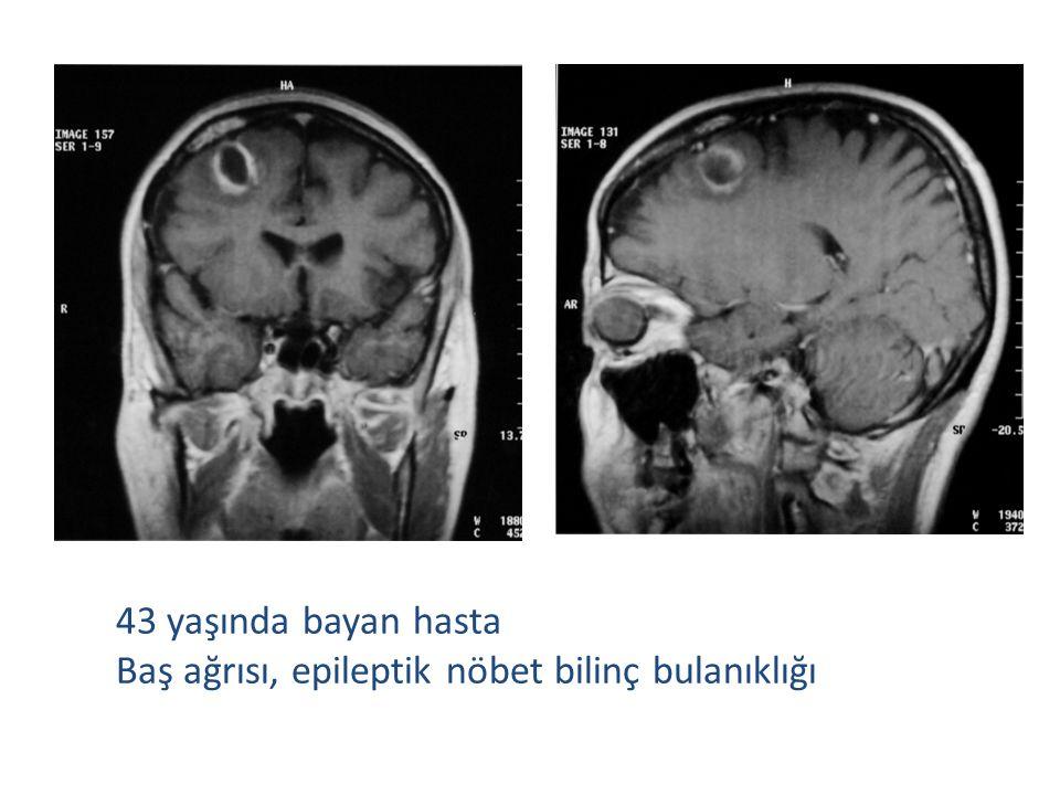 43 yaşında bayan hasta Baş ağrısı, epileptik nöbet bilinç bulanıklığı