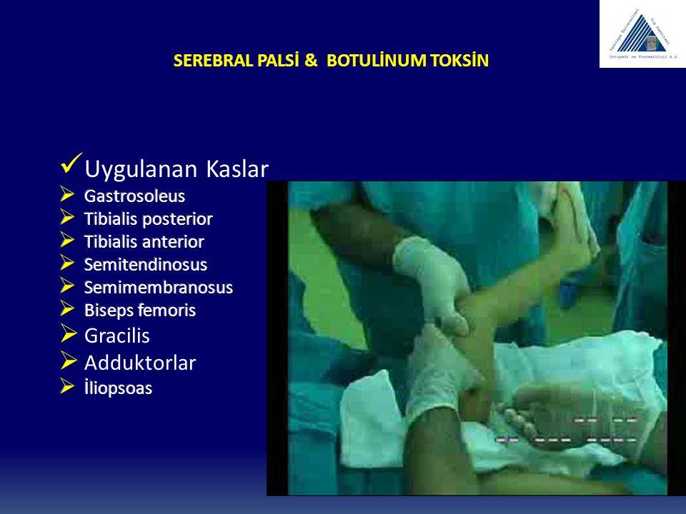 SEREBRAL PALSİ & BOTULİNUM TOKSİN