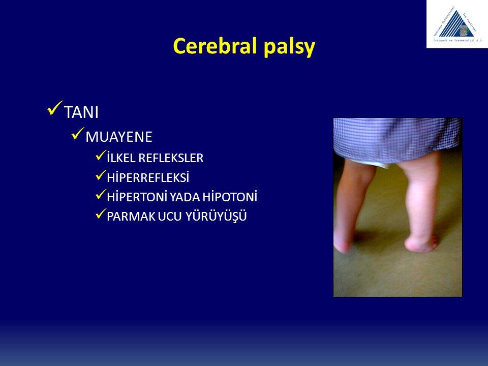 Cerebral palsy TANI MUAYENE İLKEL REFLEKSLER HİPERREFLEKSİ