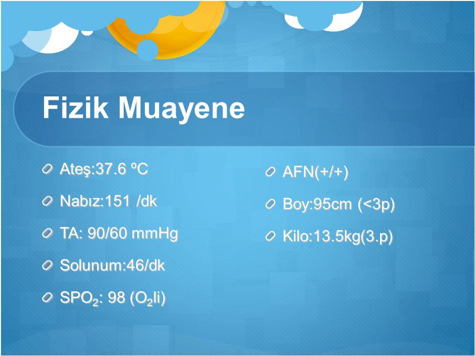 Fizik Muayene Ateş:37.6 ºC AFN(+/+) Nabız:151 /dk Boy:95cm (<3p)