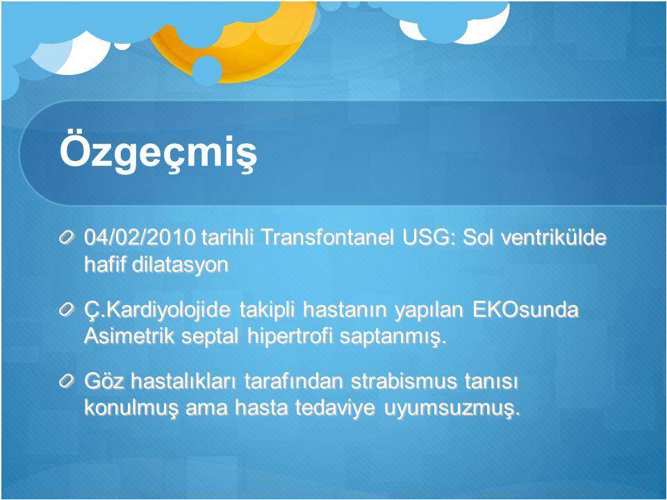 Özgeçmiş 04/02/2010 tarihli Transfontanel USG: Sol ventrikülde hafif dilatasyon.